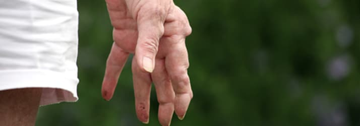 arthritis affecting fingers